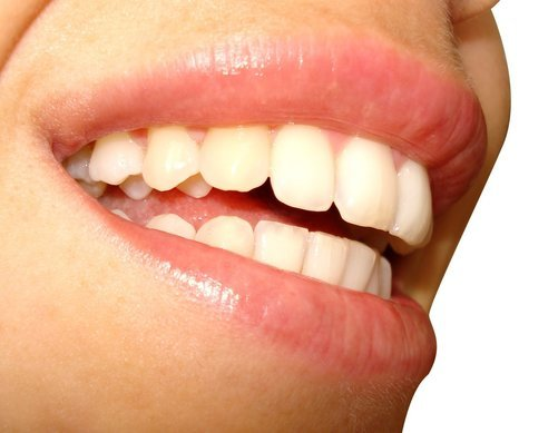 Ta hand om dina tänder
